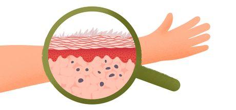Что такое псориаз?