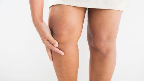 Высокий индекс массы тела может увеличить риск развития псориатического артрита у людей с псориазом